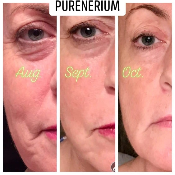 nerium night cream before after
